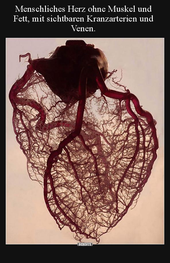 Menschliches Herz ohne Muskel und Fett, mit sichtbaren..   Lustige ...